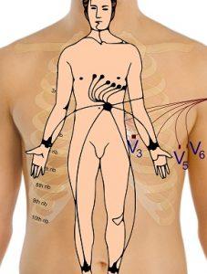 mini-electrocardiogram-165962_1920